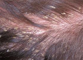 La máscara para los cabellos en base a la cebolla contra la caída de los cabello