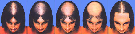 Los medios más buenos públicos para los cabellos