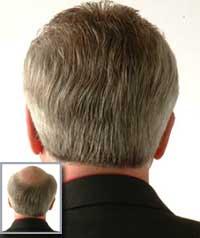 2981a5d80 Pelucas Indetectables – Caída del pelo Alopecia Calvicie Pérdida del cabello
