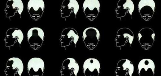 tipos-de-alopecia
